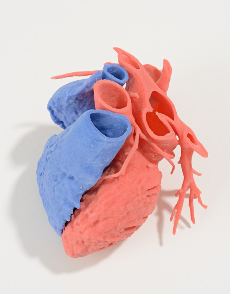 3D printed surgical heart, red and blue acrylic, designed by Dr James Otton